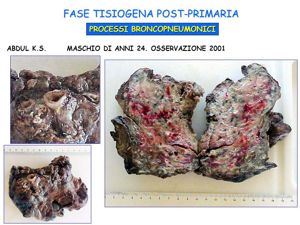 FASE TISIOGENA POST-PRIMARIA PROCESSI BRONCOPNEUMONICI ABDUL K.S.MASCHIO DI ANNI 24. OSSERVAZIONE 2001