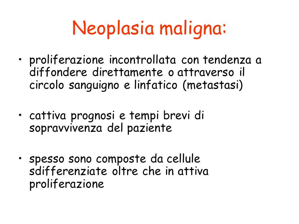 Neoplasia maligna: proliferazione incontrollata con tendenza a diffondere direttamente o attraverso il circolo sanguigno e linfatico (metastasi) catti
