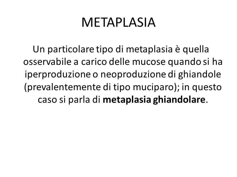 METAPLASIA Un particolare tipo di metaplasia è quella osservabile a carico delle mucose quando si ha iperproduzione o neoproduzione di ghiandole (prev