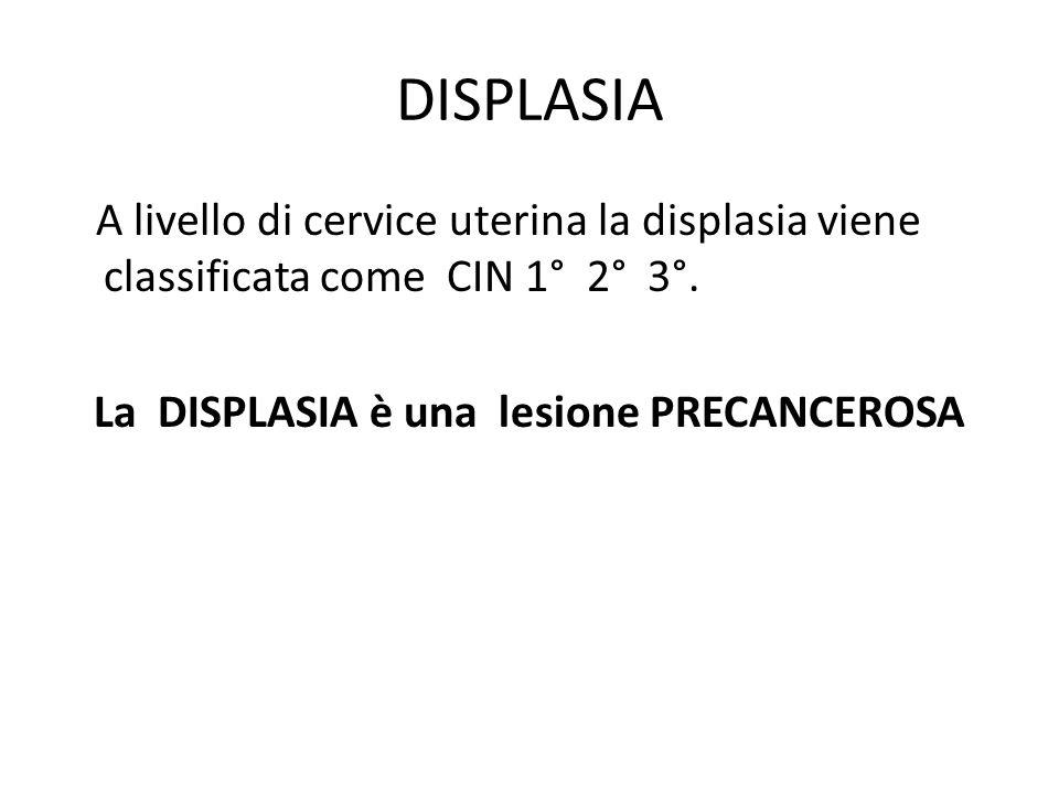 DISPLASIA A livello di cervice uterina la displasia viene classificata come CIN 1° 2° 3°. La DISPLASIA è una lesione PRECANCEROSA