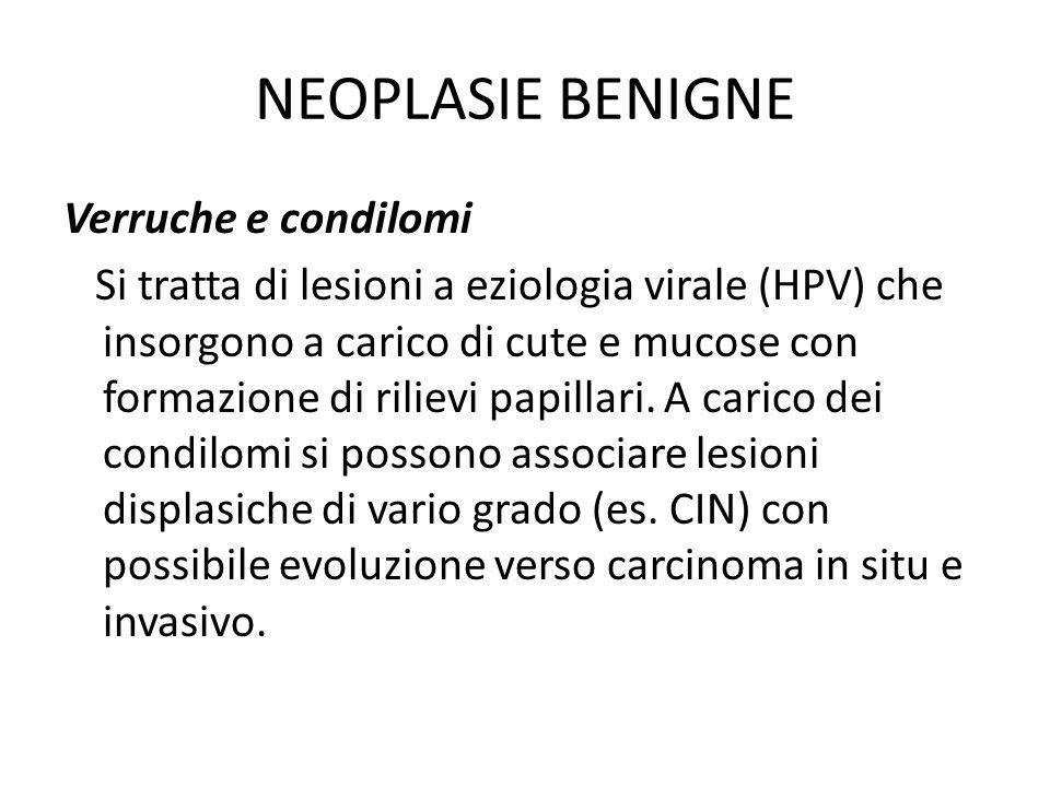 NEOPLASIE BENIGNE Verruche e condilomi Si tratta di lesioni a eziologia virale (HPV) che insorgono a carico di cute e mucose con formazione di rilievi