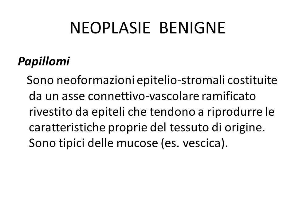 NEOPLASIE BENIGNE Papillomi Sono neoformazioni epitelio-stromali costituite da un asse connettivo-vascolare ramificato rivestito da epiteli che tendon
