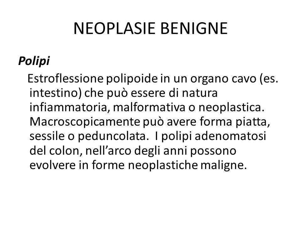 NEOPLASIE BENIGNE Polipi Estroflessione polipoide in un organo cavo (es. intestino) che può essere di natura infiammatoria, malformativa o neoplastica