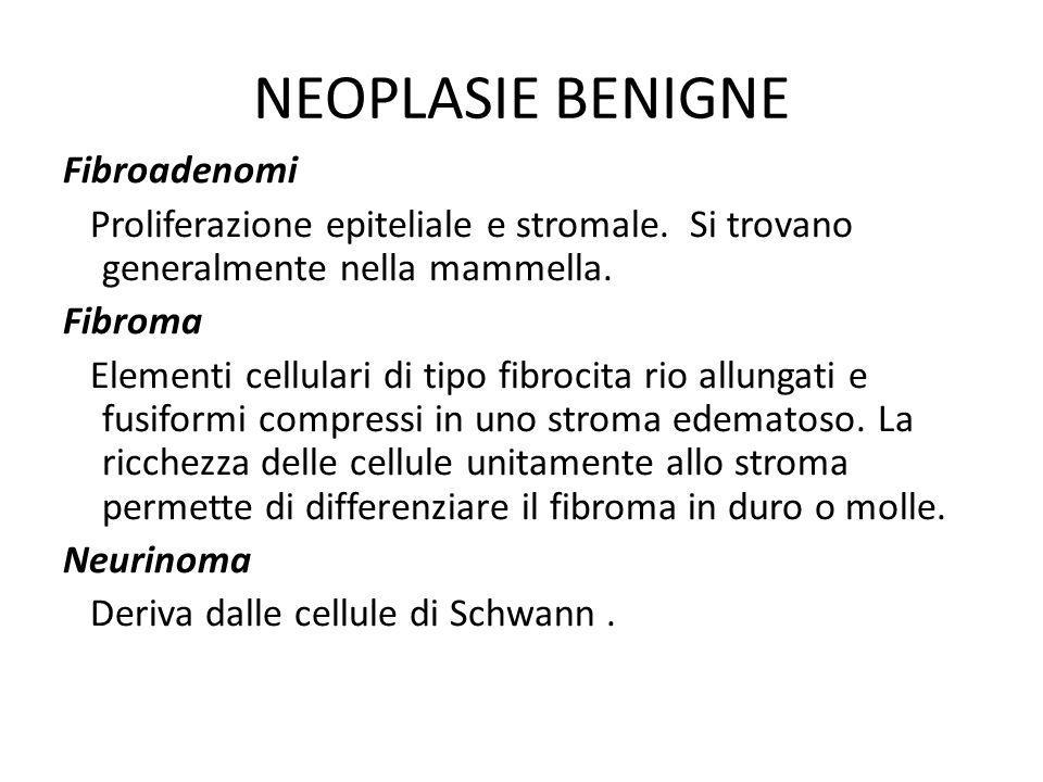 NEOPLASIE BENIGNE Fibroadenomi Proliferazione epiteliale e stromale. Si trovano generalmente nella mammella. Fibroma Elementi cellulari di tipo fibroc