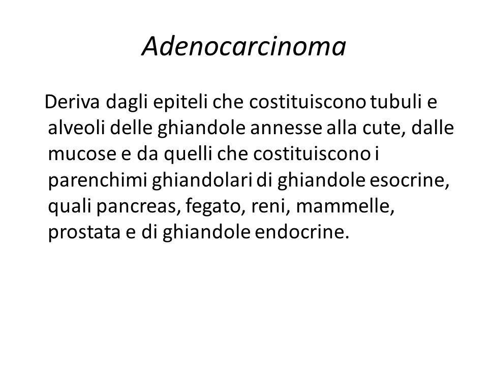 Adenocarcinoma Deriva dagli epiteli che costituiscono tubuli e alveoli delle ghiandole annesse alla cute, dalle mucose e da quelli che costituiscono i
