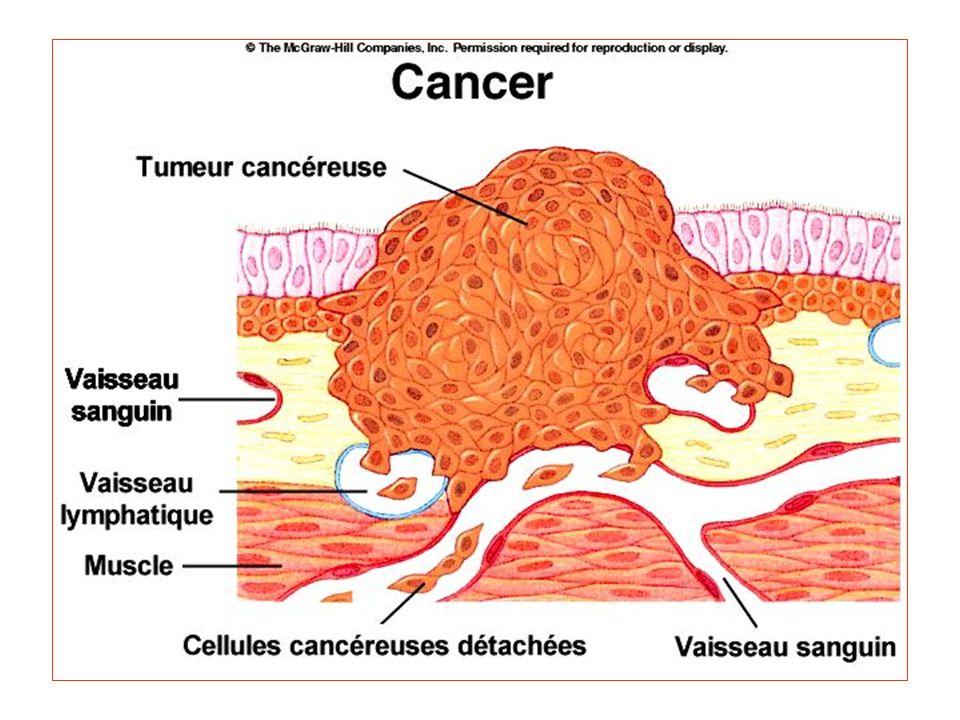 Il cancro Una cellula può perdere il controlle della sua divisione. Può quindi dare origine ad un tumore. Tumore benigno : Le cellule restano raggrupp