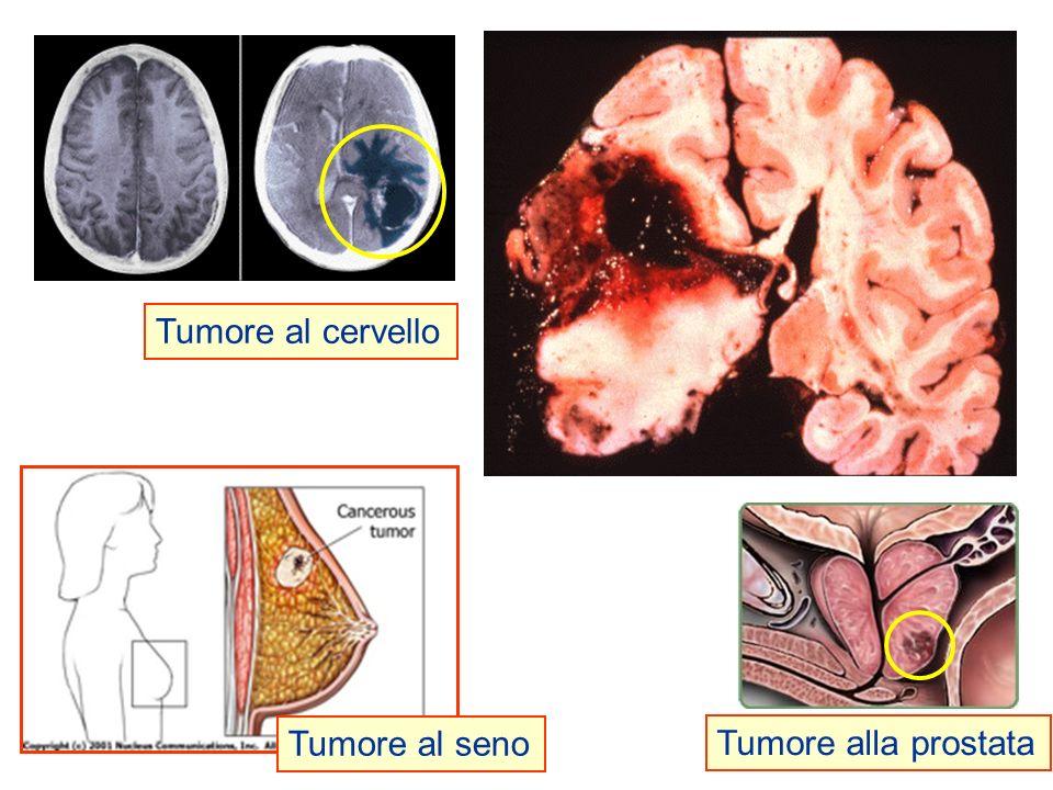 Principali anomalie delle cellule cancerose: Divisione anarchica e perpetua (cellule immortali).Divisione anarchica e perpetua (cellule immortali).