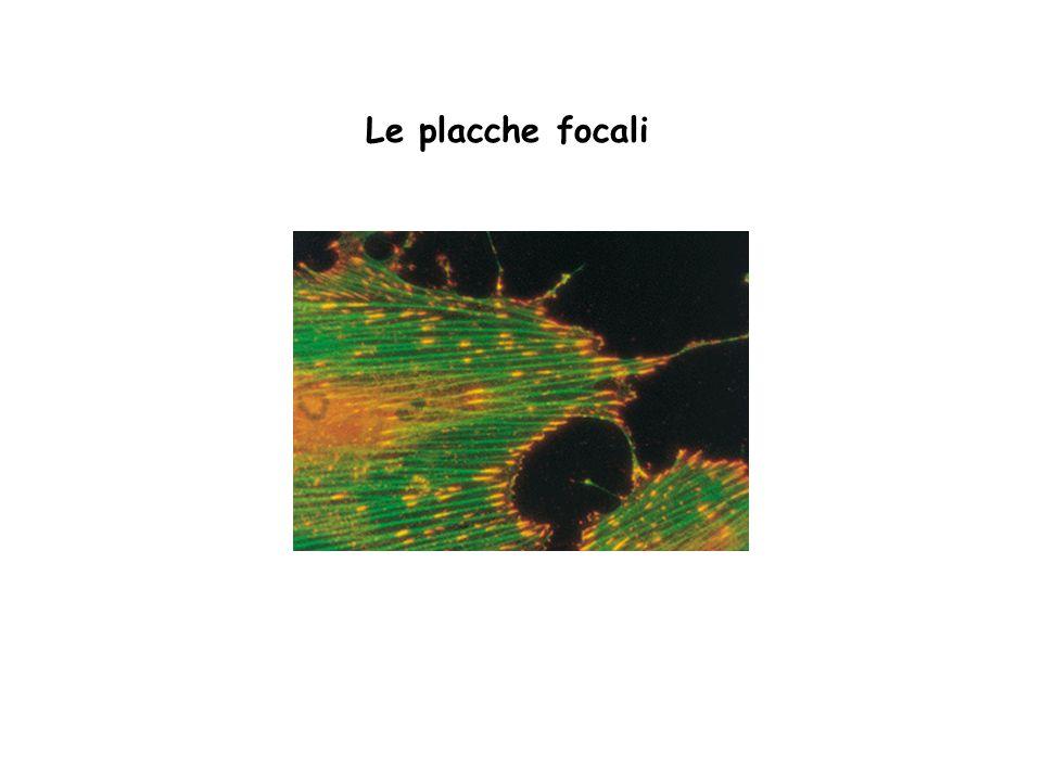 Le placche focali