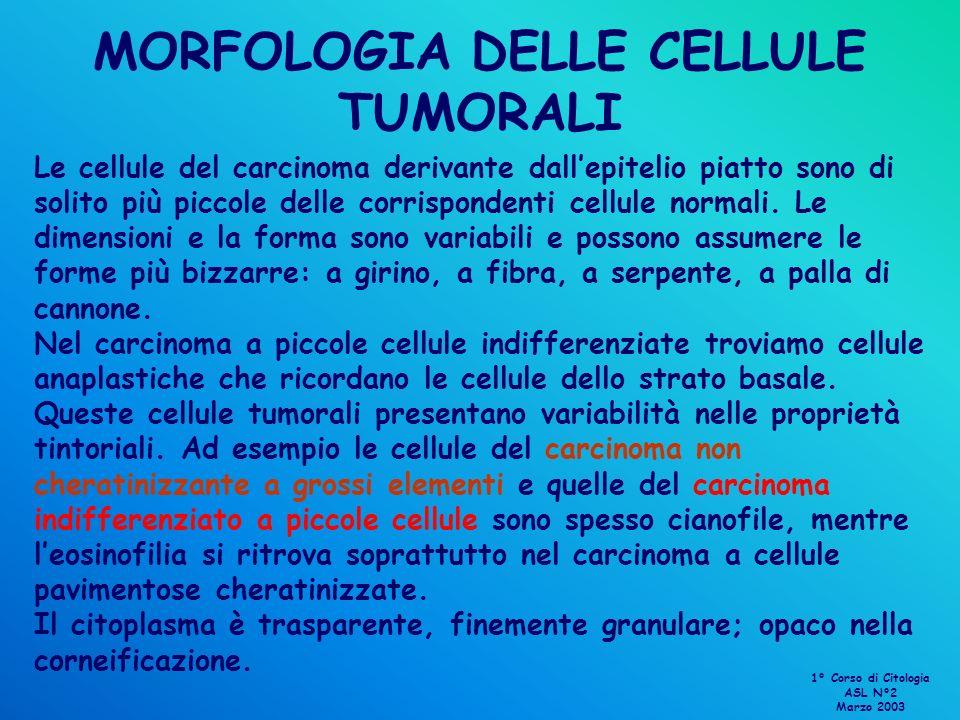 MORFOLOGIA DELLE CELLULE TUMORALI Le cellule del carcinoma derivante dallepitelio piatto sono di solito più piccole delle corrispondenti cellule norma