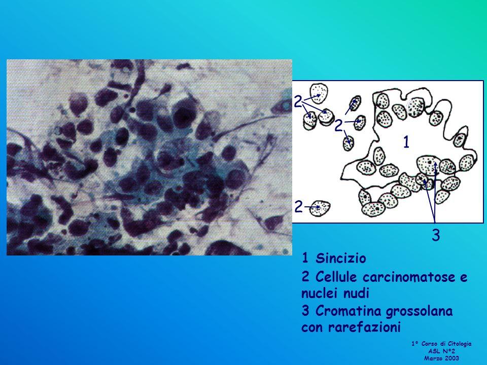 1 1 Sincizio 2 2 2 2 Cellule carcinomatose e nuclei nudi 3 3 Cromatina grossolana con rarefazioni 1° Corso di Citologia ASL N°2 Marzo 2003