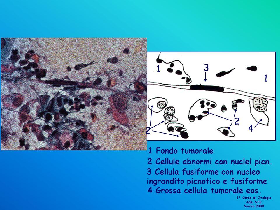 4 Grossa cellula tumorale eos. 4 1 1 1 Fondo tumorale 2 2 2 Cellule abnormi con nuclei picn. 3 3 Cellula fusiforme con nucleo ingrandito picnotico e f