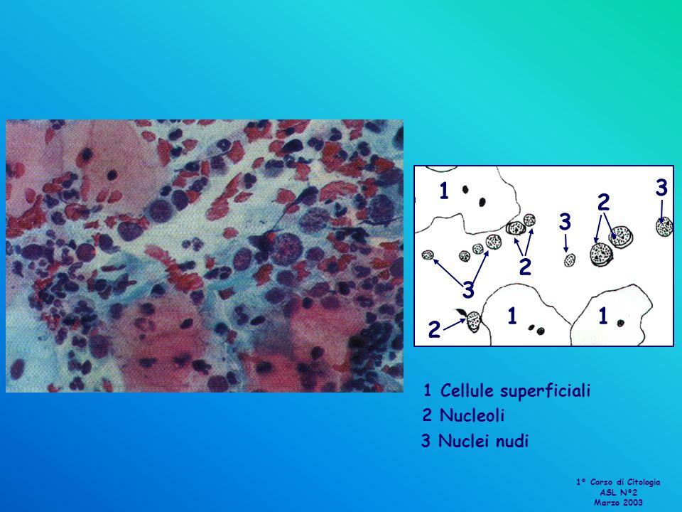 1 11 1 Cellule superficiali 2 2 2 2 Nucleoli 3 3 3 3 Nuclei nudi 1° Corso di Citologia ASL N°2 Marzo 2003