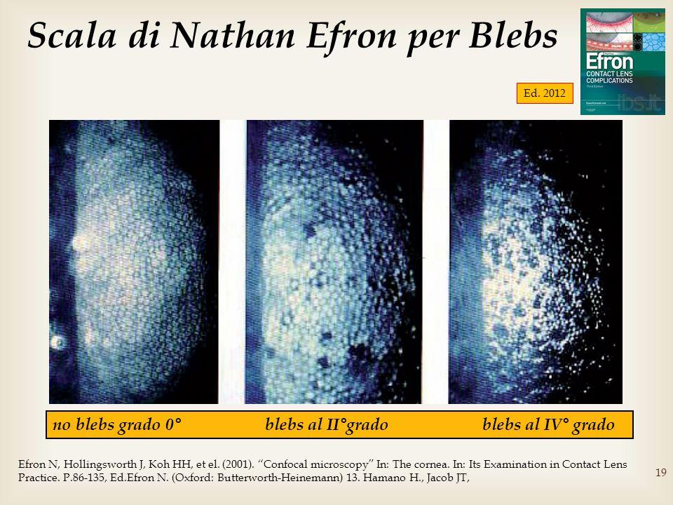 19 no blebs grado 0° blebs al II°grado blebs al IV° grado Scala di Nathan Efron per Blebs Efron N, Hollingsworth J, Koh HH, et el. (2001). Confocal mi