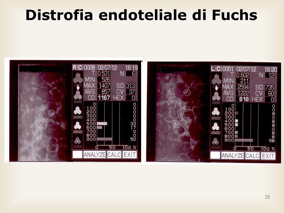 25 Distrofia endoteliale di Fuchs