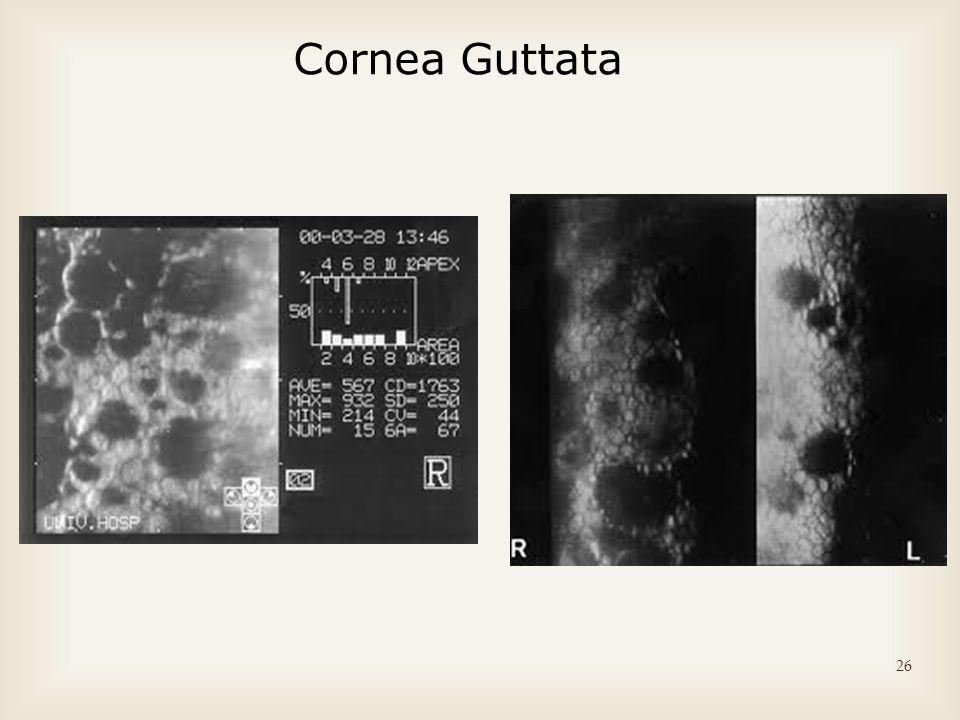 26 Cornea Guttata