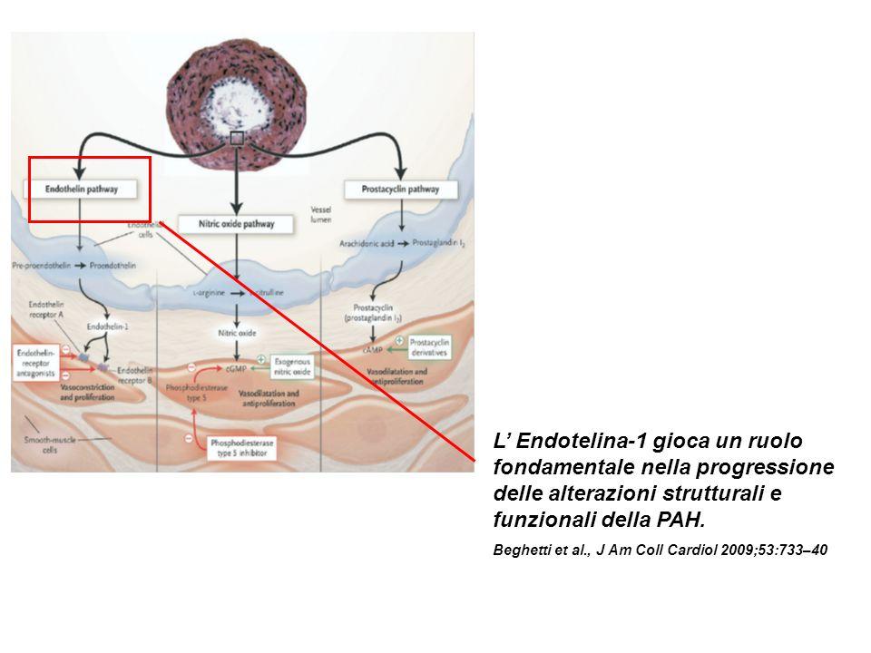 L Endotelina-1 gioca un ruolo fondamentale nella progressione delle alterazioni strutturali e funzionali della PAH.