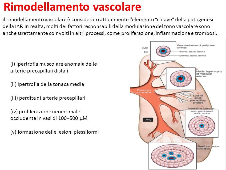 il rimodellamento vascolare è considerato attualmente lelemento chiave della patogenesi della IAP.