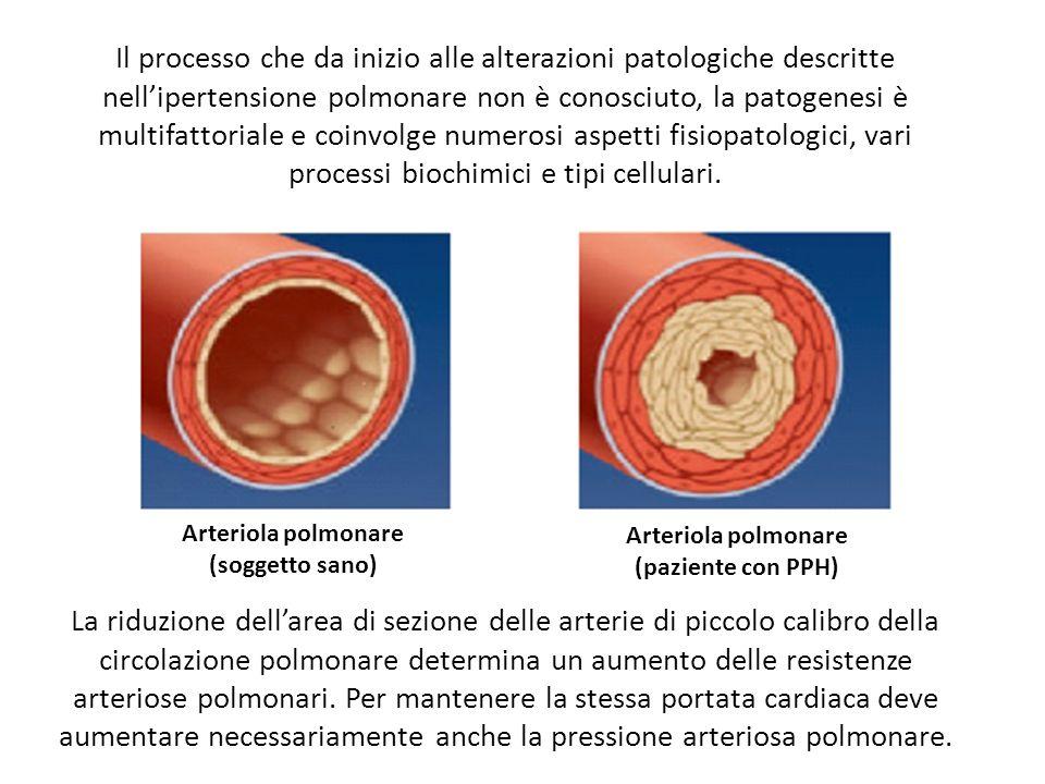 Il processo che da inizio alle alterazioni patologiche descritte nellipertensione polmonare non è conosciuto, la patogenesi è multifattoriale e coinvolge numerosi aspetti fisiopatologici, vari processi biochimici e tipi cellulari.