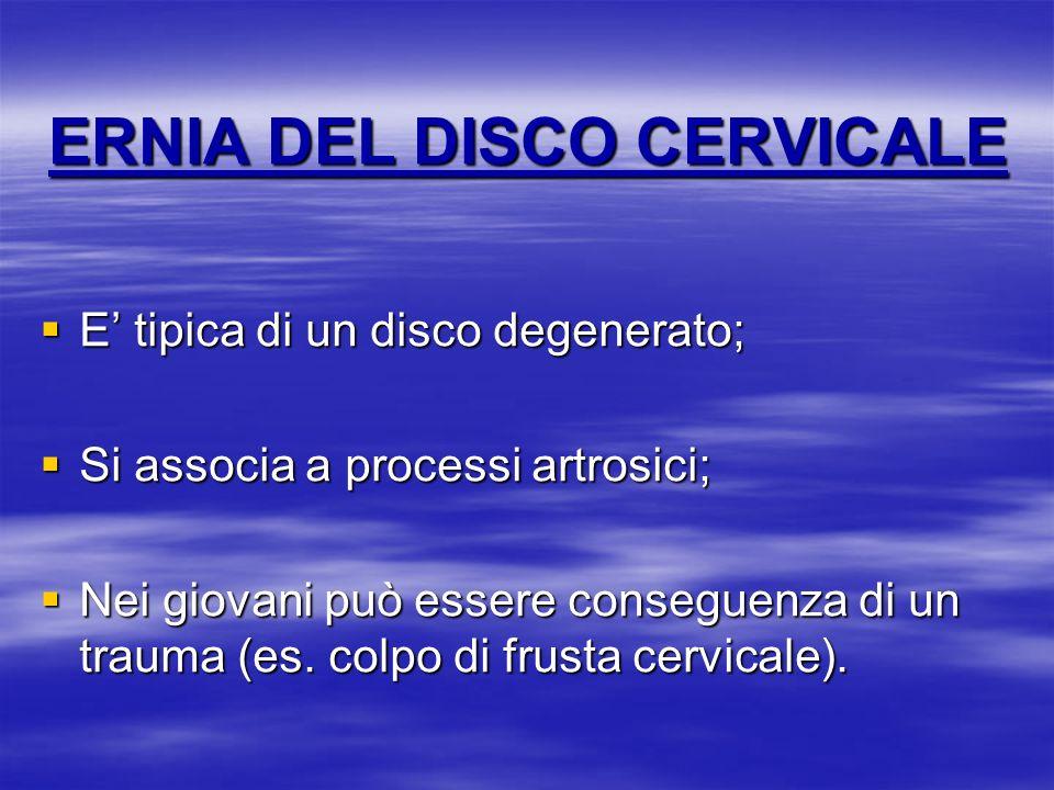 ERNIA DEL DISCO CERVICALE E tipica di un disco degenerato; E tipica di un disco degenerato; Si associa a processi artrosici; Si associa a processi art
