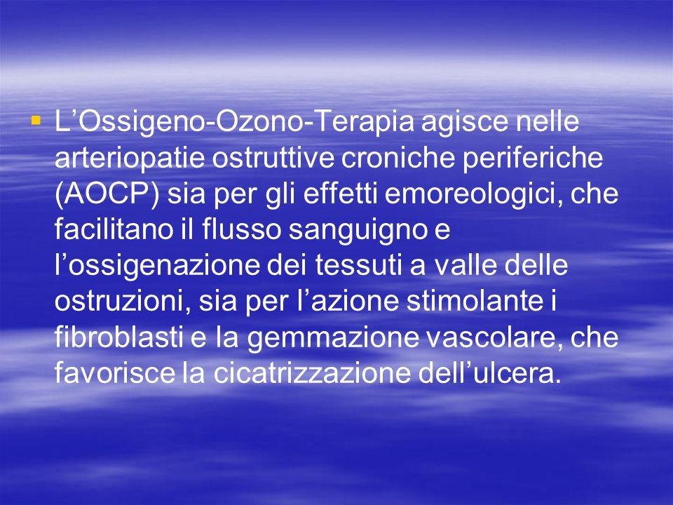 LOssigeno-Ozono-Terapia agisce nelle arteriopatie ostruttive croniche periferiche (AOCP) sia per gli effetti emoreologici, che facilitano il flusso sa