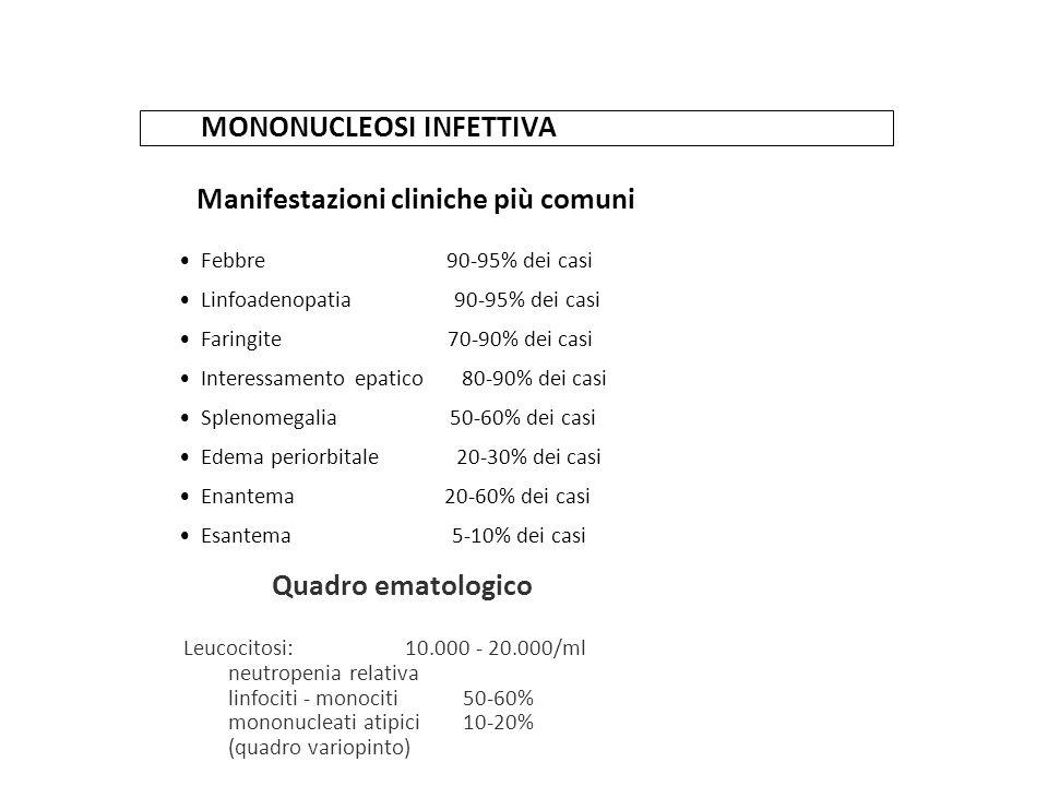 MONONUCLEOSI INFETTIVA Manifestazioni cliniche più comuni Febbre 90-95% dei casi Linfoadenopatia 90-95% dei casi Faringite 70-90% dei casi Interessame
