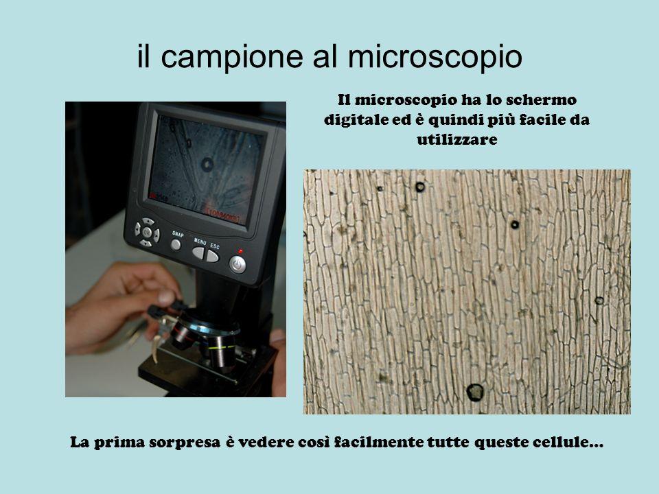 il campione al microscopio Il microscopio ha lo schermo digitale ed è quindi più facile da utilizzare La prima sorpresa è vedere così facilmente tutte