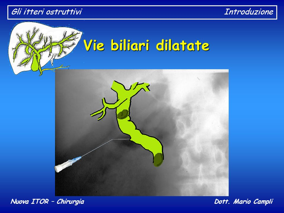 Gli itteri ostruttiviIntroduzione Nuova ITOR – ChirurgiaDott. Mario Campli Vie biliari dilatate Litiasi biliare
