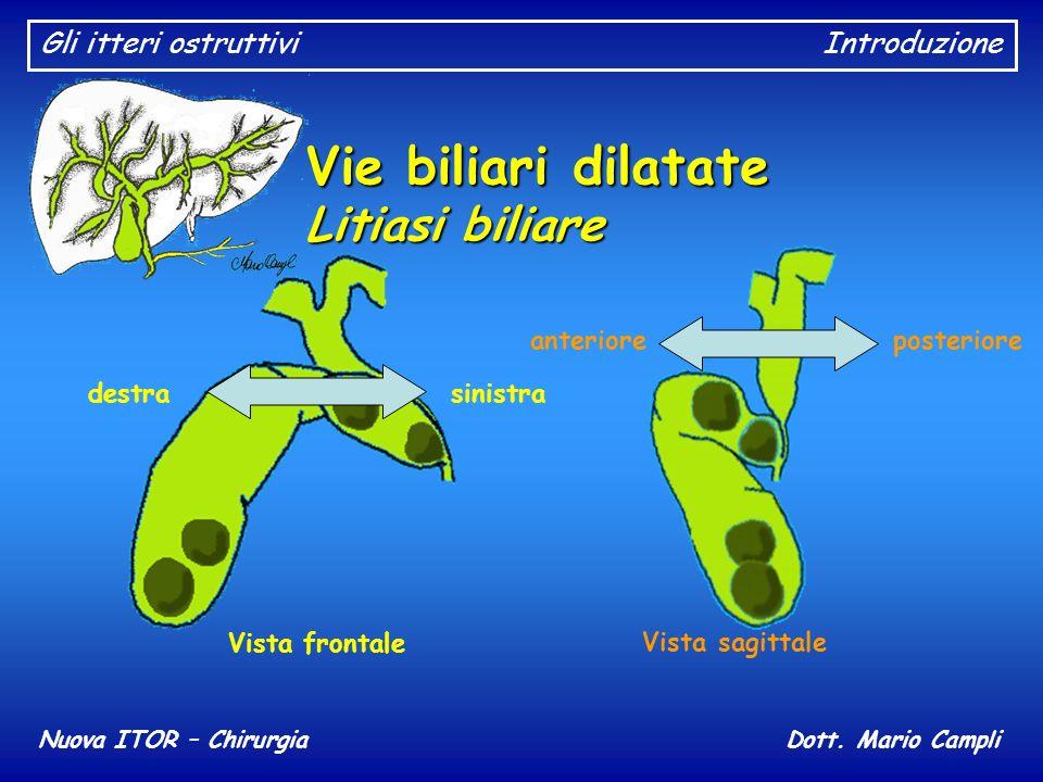 Gli itteri ostruttiviIntroduzione Nuova ITOR – ChirurgiaDott. Mario Campli Vie biliari dilatate Litiasi biliare destra sinistra Vista frontale anterio