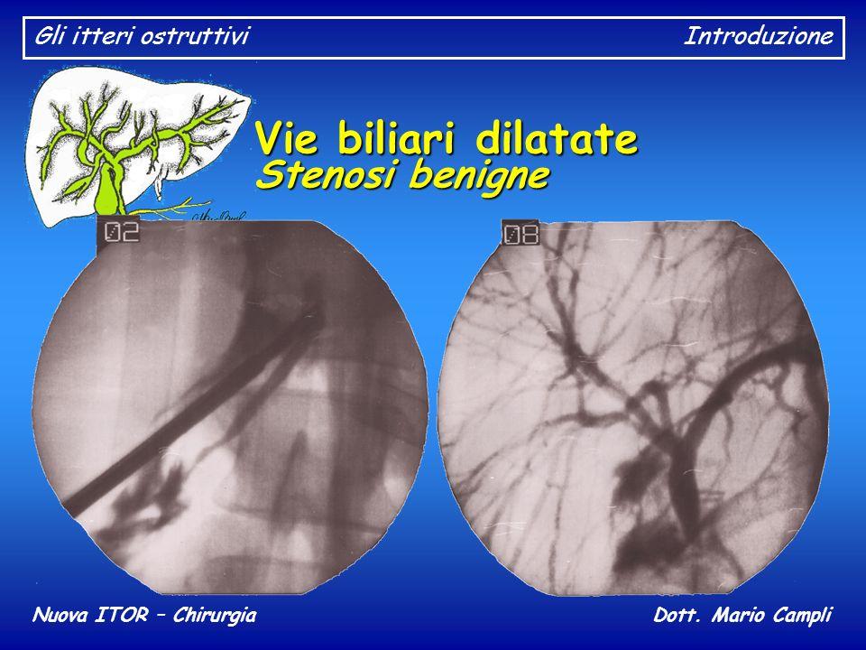Gli itteri ostruttiviIntroduzione Nuova ITOR – ChirurgiaDott. Mario Campli Vie biliari dilatate Stenosi benigne