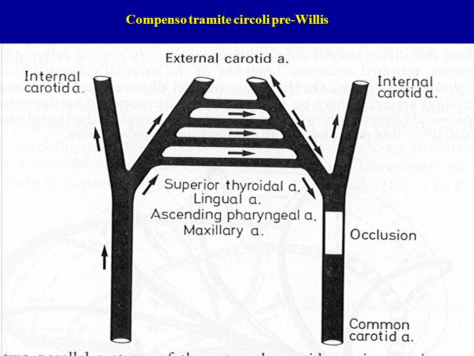 Compenso tramite circoli pre-Willis