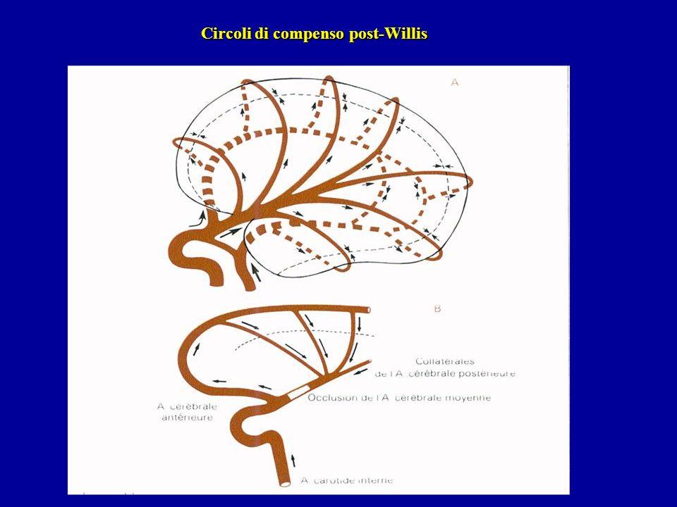 Circoli di compenso post-Willis