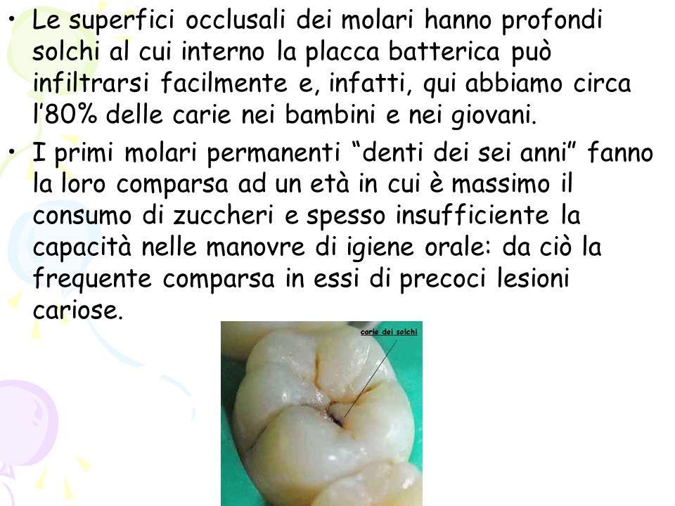 Le superfici occlusali dei molari hanno profondi solchi al cui interno la placca batterica può infiltrarsi facilmente e, infatti, qui abbiamo circa l8