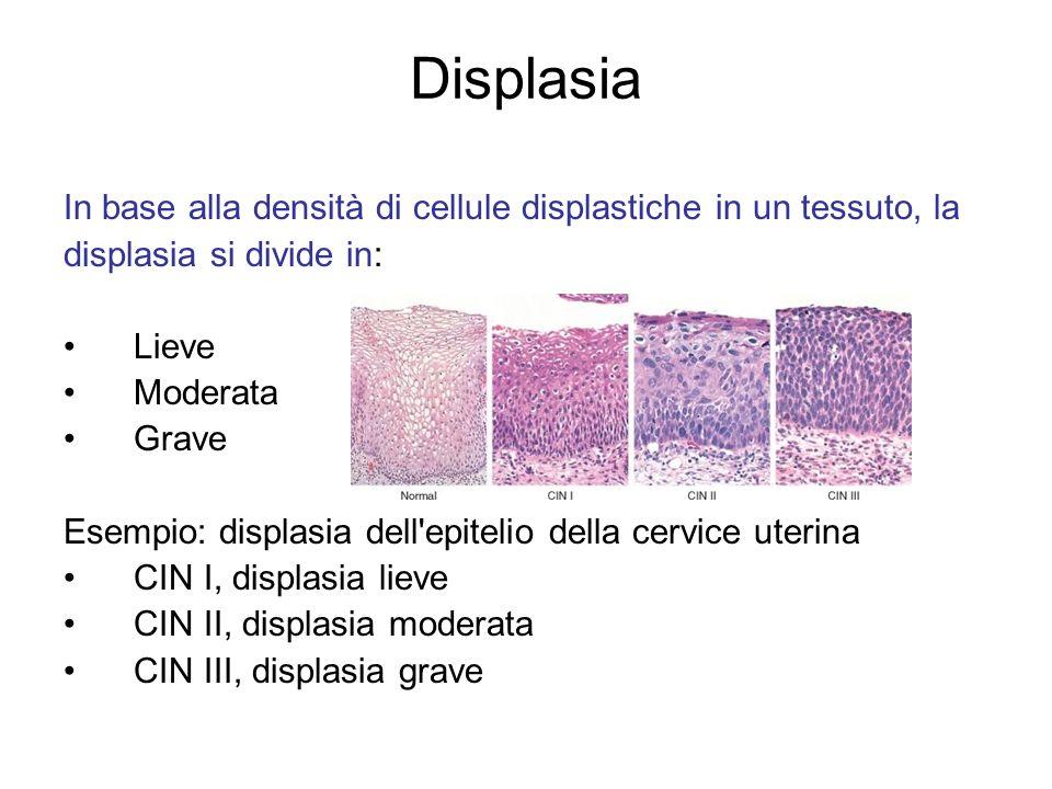 Displasia In base alla densità di cellule displastiche in un tessuto, la displasia si divide in: Lieve Moderata Grave Esempio: displasia dell'epitelio