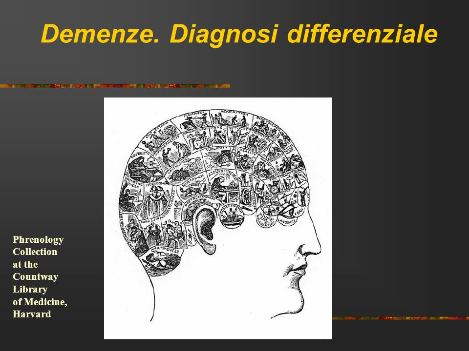 Demenze. Diagnosi differenziale Phrenology Collection at the Countway Library of Medicine, Harvard