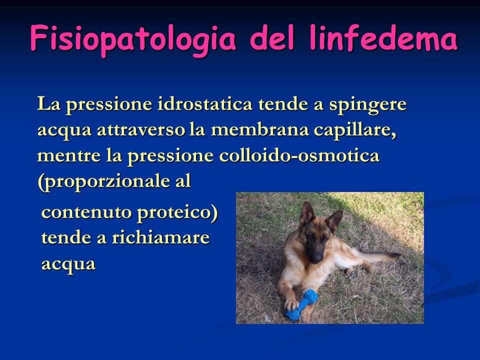 Fisiopatologia del linfedema Linfedema CronicoComplicanzeElefantiasi Evoluzione del linfedema