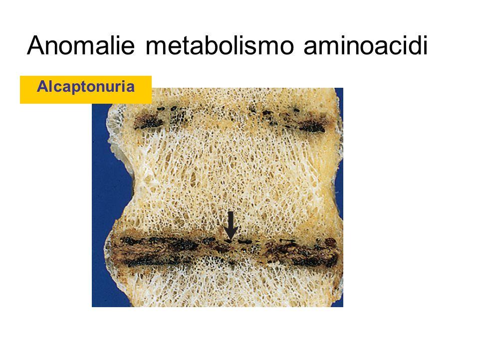 Anomalie metabolismo aminoacidi Alcaptonuria