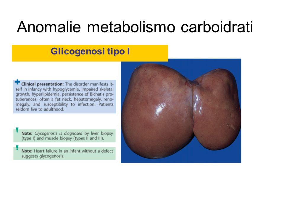 Anomalie metabolismo carboidrati Glicogenosi tipo I