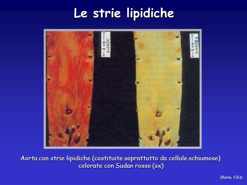 (Rubin, CEA) Le strie lipidiche Aorta con strie lipidiche (costituite soprattutto da cellule schiumose) colorate con Sudan rosso (sx)