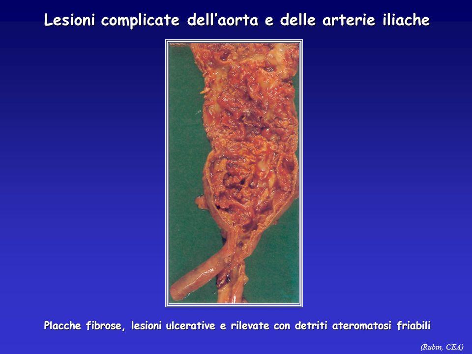 (Rubin, CEA) Lesioni complicate dellaorta e delle arterie iliache Placche fibrose, lesioni ulcerative e rilevate con detriti ateromatosi friabili