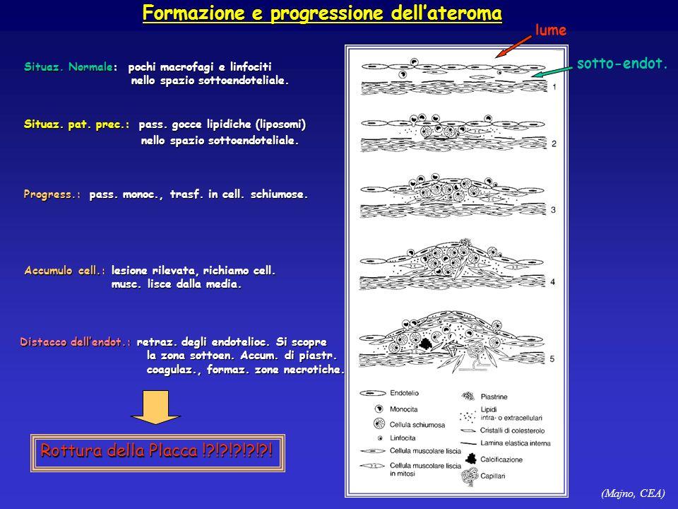 (Majno, CEA) Formazione e progressione dellateroma Situaz. Normale: pochi macrofagi e linfociti nello spazio sottoendoteliale. nello spazio sottoendot