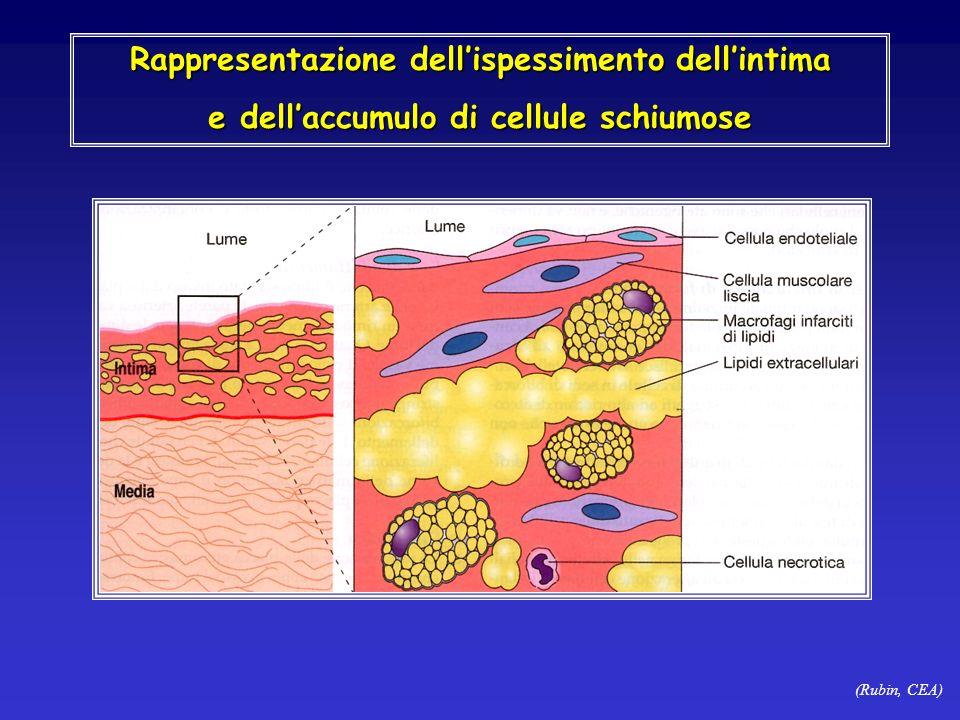 (Rubin, CEA) Rappresentazione dellispessimento dellintima e dellaccumulo di cellule schiumose