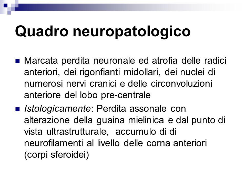 Quadro neuropatologico Atrofia delle radici anteriori Atrofia dei rigonfianti midollari Depauperamento dei motoneuroni delle corna anteriori del Midollo Depauperamento dei motoneuroni periferici di numerosi nervi cranici (IX, X, XI, XII, VII, V) Degenerazione del fascio piramidale Atrofia del lobo frontale al livello della corteccia motoria Nervi periferici: Atrofia dellassone e sofferenza della sostanza bianca Atrofia muscolare Istologicamente: Corpi sferoidali Corpi di Bunina Fasci gliali