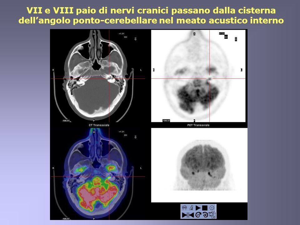 VII e VIII paio di nervi cranici passano dalla cisterna dellangolo ponto-cerebellare nel meato acustico interno