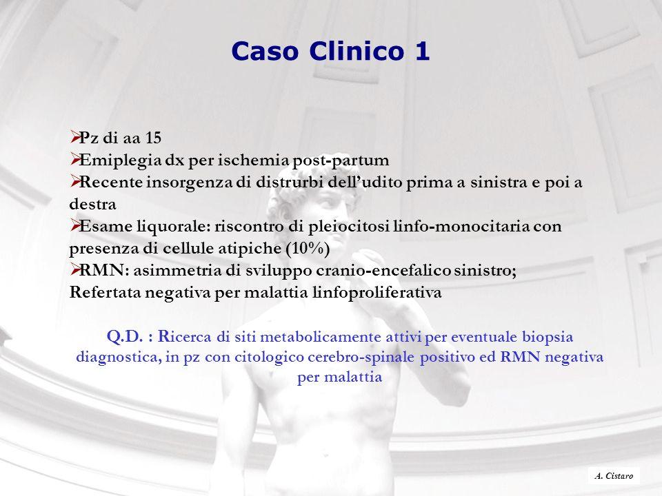 Caso Clinico 1 Pz di aa 15 Emiplegia dx per ischemia post-partum Recente insorgenza di distrurbi delludito prima a sinistra e poi a destra Esame liquo