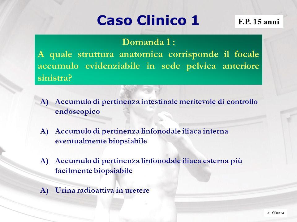 Caso Clinico 1 A)Accumulo di pertinenza intestinale meritevole di controllo endoscopico A)Accumulo di pertinenza linfonodale iliaca interna eventualme