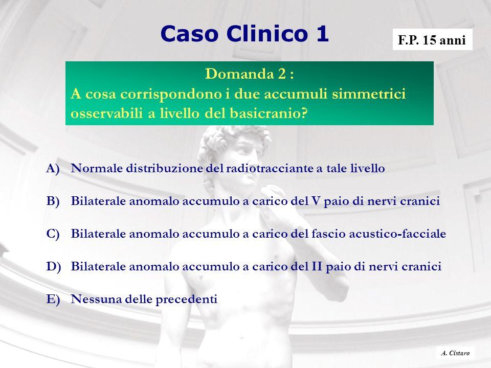 Caso Clinico 1 A)Normale distribuzione del radiotracciante a tale livello B)Bilaterale anomalo accumulo a carico del V paio di nervi cranici C)Bilater