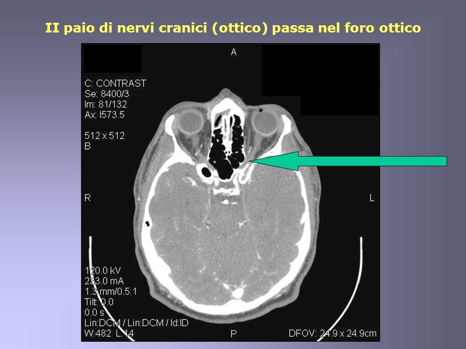 II paio di nervi cranici (ottico) passa nel foro ottico