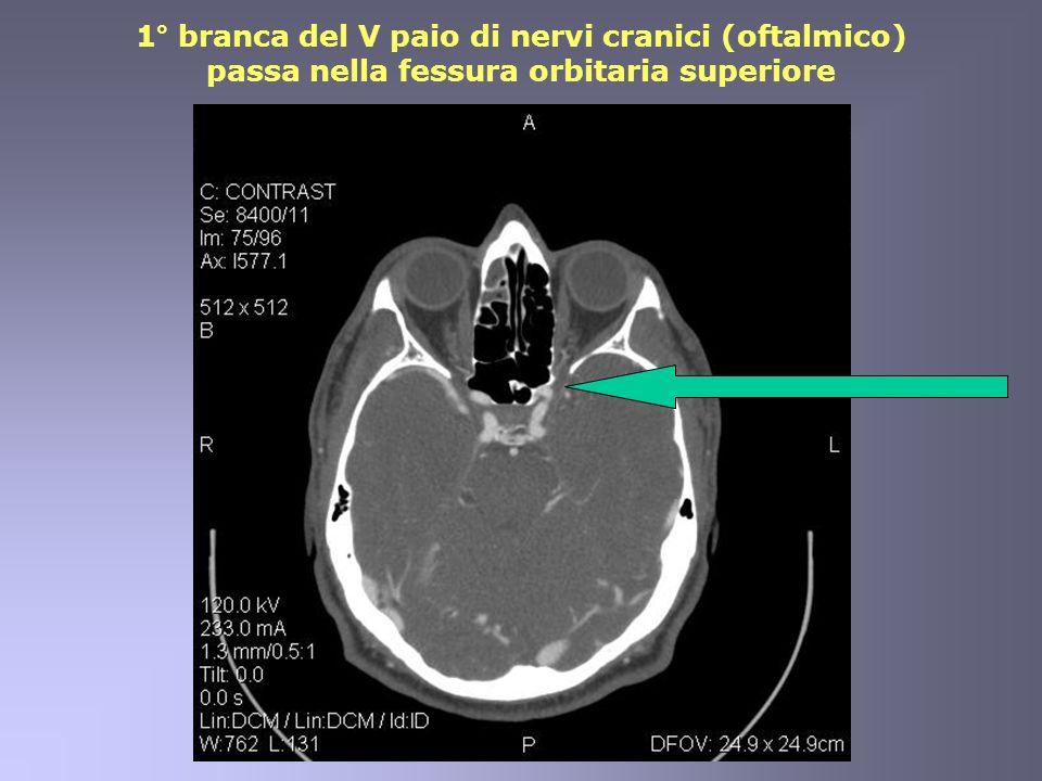 1° branca del V paio di nervi cranici (oftalmico) passa nella fessura orbitaria superiore
