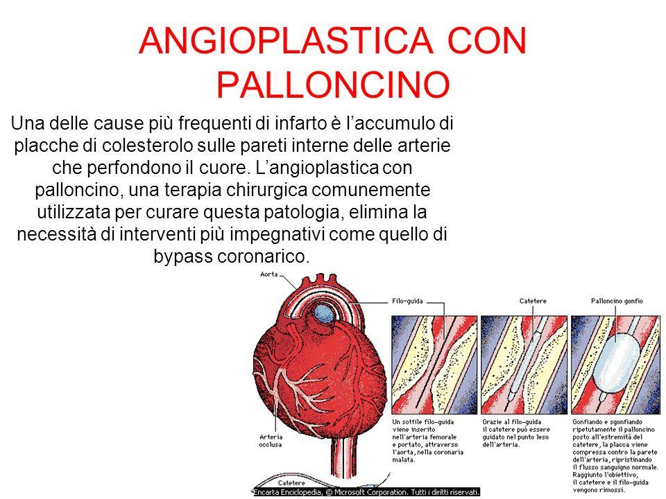 ANGIOPLASTICA CON PALLONCINO Una delle cause più frequenti di infarto è laccumulo di placche di colesterolo sulle pareti interne delle arterie che per