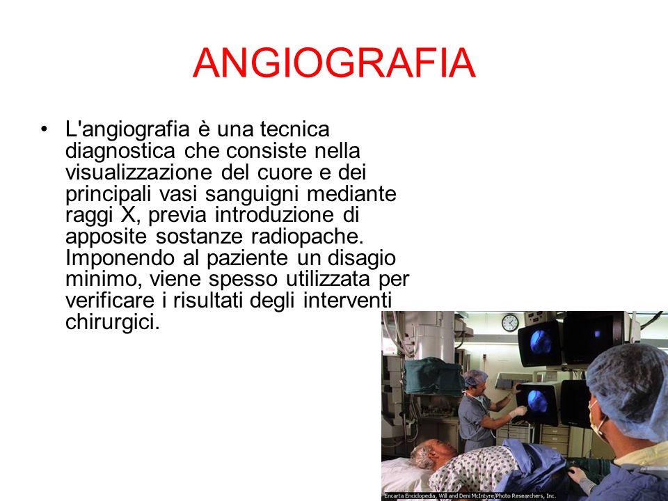 ANGIOGRAFIA L'angiografia è una tecnica diagnostica che consiste nella visualizzazione del cuore e dei principali vasi sanguigni mediante raggi X, pre